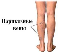 samoshuvstvye0039