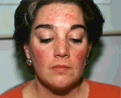 Аллергия на березу симптомы, профилактика, лечение