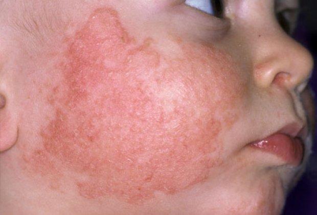 аллергия на солнце можно
