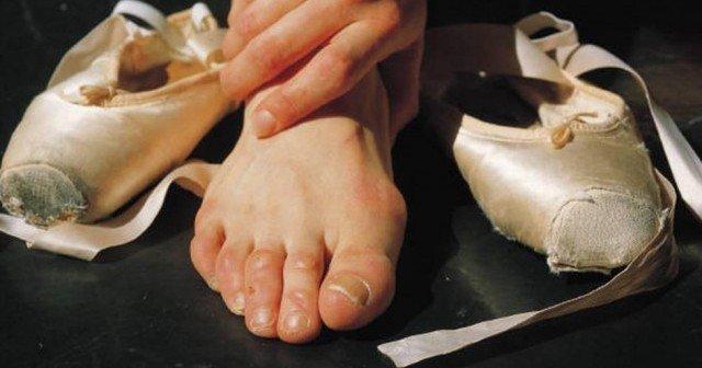 Воспаление косточки на ноге причины как лечить снятие воспаления