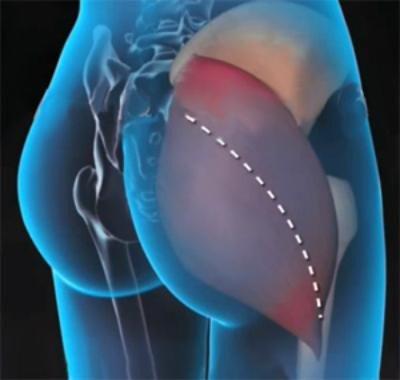 похудение в верхней части тела