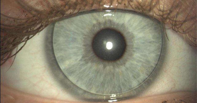 Лазерная операция по восстановлению зрения отзывы