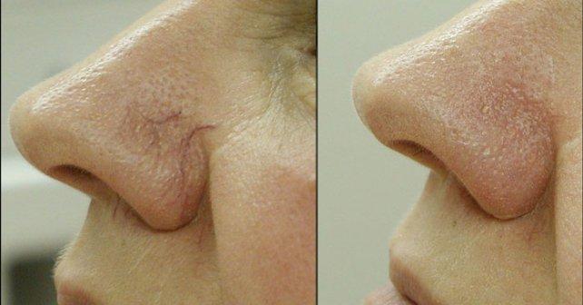 черное пятно на ногте большого пальца ноги фото